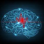 Udar mózgu – objawy, leczenie, profilaktyka